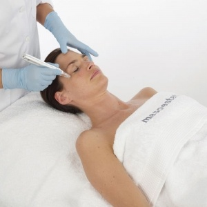 Aesthetic Microneedling London