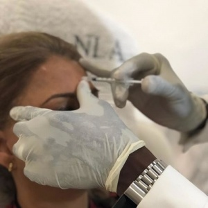 Anti-Wrinkle Injections B-A