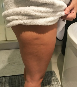 Toning-Before-Cellulite-cryotherapy-treatment