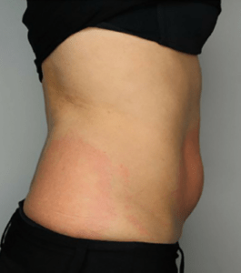 abdomen_after-Cryotherapy treatment