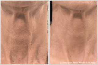 before and after Profhilo treatment