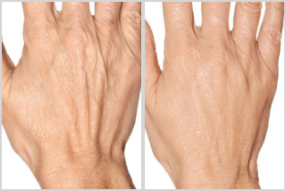 before and after hands Profhilo